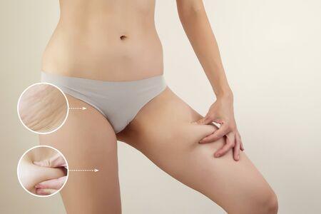 female body and graphic circles of fat skin  copmosite image Foto de archivo