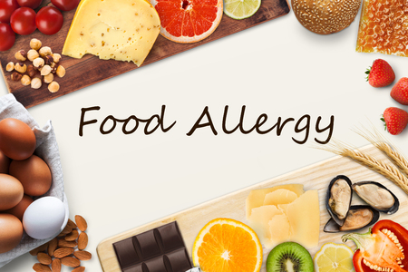 Allergy food concept. Set of allergic products as nuts, cheese, honey, citrus fruits, eggs, chocolate, kiwi, strawberry and seafood on wooden boards, isolated on white with black inscription, top view