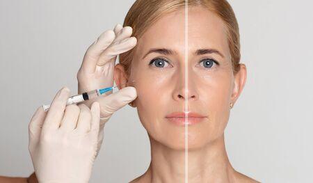 Prima e dopo l'effetto. Trattamento di iniezione di bellezza per donna anziana con siringa per entrambe le parti del viso, panorama Archivio Fotografico