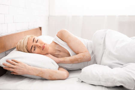 Mature lady with vitiligo skin sleeping in bedroom, empty space Standard-Bild