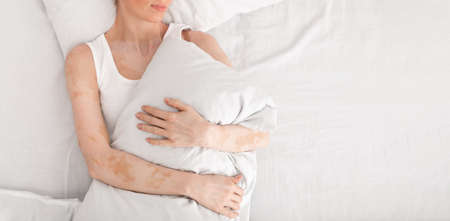 Loneliness. Woman with vitiligo lying in double bed and hugging pillow, top view, panorama with empty space