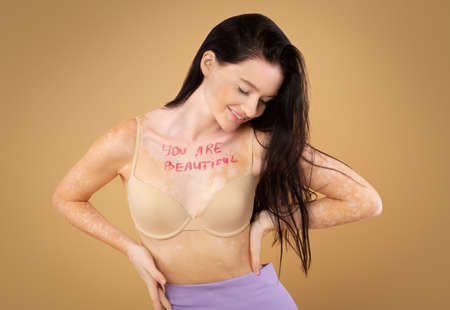 You are beautiful. Motivational inscription on chest of young woman with vitiligo disorder posing in bra over beige studio backgroung, happy body positive female in lingerie enjoying her beauty