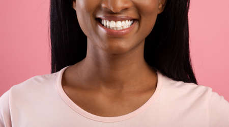 Dental clinic. Cropped view of young black lady with beautiful radiant smile on pink studio background, banner design. Closeup of African American woman smiling and showing her white straight teeth