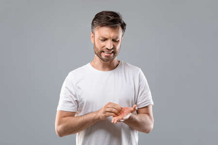 Annoyed middle aged bearded man scratching his red palm on grey studio background, copy space. Caucasian man suffering from allergic reaction, psoriasis or eczema, having itchy hands Archivio Fotografico