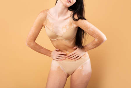 Love My Body. Closeup Shot Of Young Woman With Vitiligo Skin Foto de archivo
