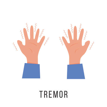 Hands with tremor symptom. Parkinson disease. Trembling or Shivering arms. Physiological stress symptoms. Mental disorders, panic, fear. Vector illustration in flat cartoon style.