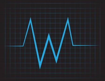 EKG raster met blauwe lijnen