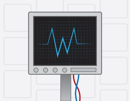 heart monitor: EKG machine on with wires  Illustration