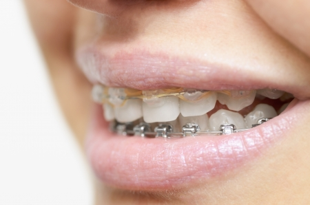 Beautiful womans smile with braces photo