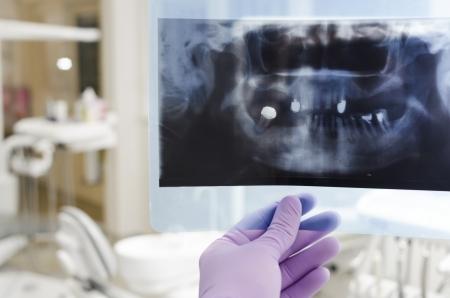caries dental: M�dico sosteniendo y mirando radiograf�a dental Foto de archivo