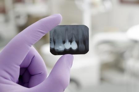 karies: Doktor innehav och tittar på tandröntgen Stockfoto