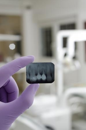 Doctor holding e guardando dentale x-ray