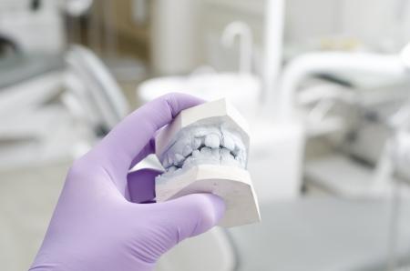 laboratorio dental: Mano de la explotaci�n agr�cola del dentista modelos de yeso dental Foto de archivo