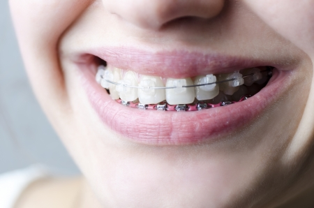 Beautiful smile with aesthetic braces photo