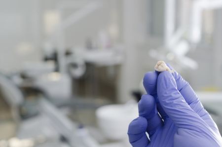 Gloved hand of dentist holding extracted wisdom tooth