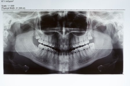 periodontal: Picture of a dental x-ray