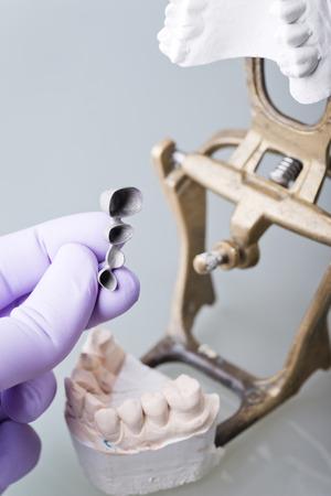 inlay: Hand of dentist holding dental gypsum models Stock Photo