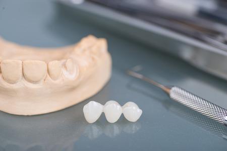 laboratorio dental: Modelos de yeso dental en laboratorio dental Foto de archivo