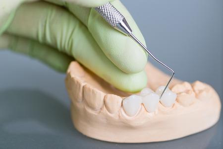 Main de dentiste tenant modèles en plâtre dentaire Banque d'images