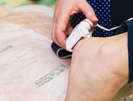 chiropodist: woman removing dry skin from her foot with grinder Stock Photo