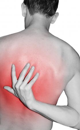 burned: Back injury Stock Photo