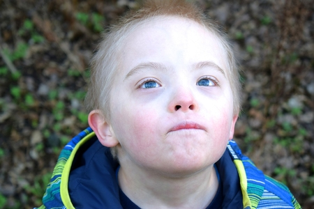 Boy with down syndrome looks up to the sky.