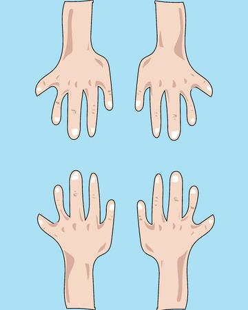 put: put your hands up