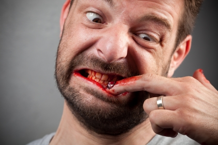 bit: Crazy nailbiter. A man biting of his nails, his fingers are covered in blood.