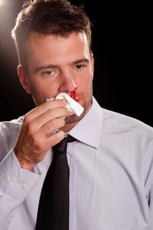 hemorragias: Hombre de negocios con una hemorragia nasal limpiándose la nariz Foto de archivo
