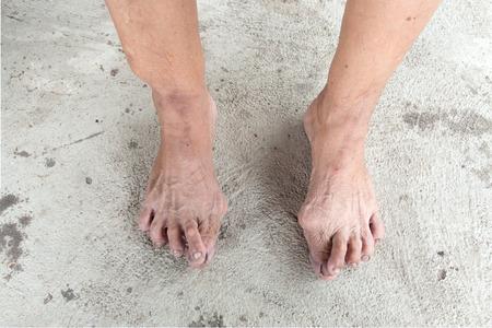 tetik: Tetik parmak yakalamak veya bükük kilitlemek için parmaklarınızı veya başparmak neden olan acı bir durumdur. Başparmak onun adı tetik parmak içinde