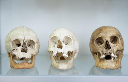 Three human skulls close up