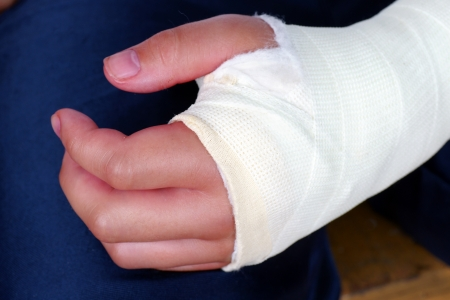 broken up: Broken hand in plaster cast with bandages, red, swollen fingers after an operation to fix the bones in place. Stock Photo