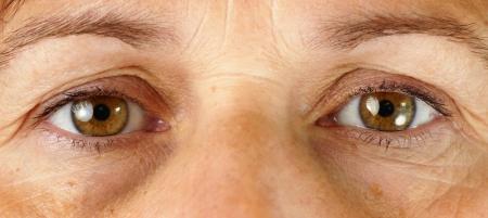 ojos tristes: Gran detalle macro de una mujer de mediana edad muy cansado o enfermo, con arrugas, daño solar, las venas en los ojos y las ojeras bajo los ojos de todo mostrando. Foto de archivo