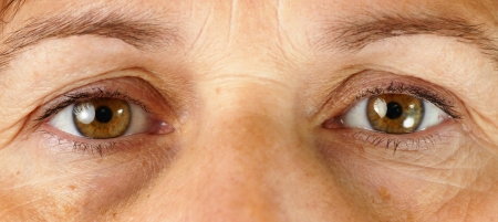 eyes: Grote detail macro van een zeer moe of ziek middelbare leeftijd vrouw, met rimpels, schade door de zon, aderen in de ogen en donkere kringen onder de ogen alle tonen. Stockfoto