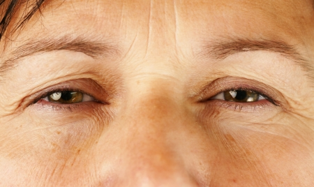 Healthcare, medical or aging concept: swollen red eyes of a wrinkly middle age woman, perfect for allergies, eye infection, cold and the likes. photo