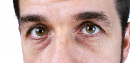 ojos llorando: Gran detalle macro de un muy cansado o enfermo, hombre de mediana edad, con arrugas, daño solar, las venas y los círculos oscuros bajo los ojos showin, retoque no, natural o sincero.