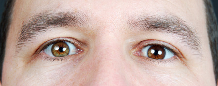 eyes hazel: Man with heterochromia iridum: different color eyes