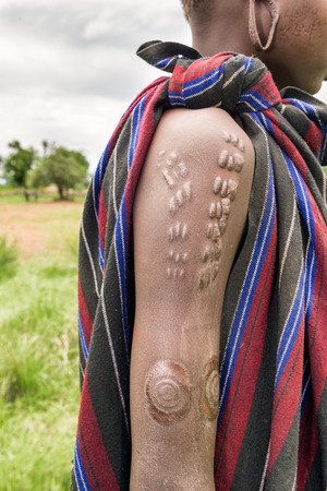 Traditional scarification typical for the Mursi tribe in Ethiopia 스톡 콘텐츠