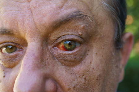 Eye, bloodshed to the eye, warts and papilla