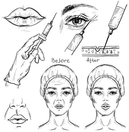 Croquis de l'injection de botox, ensemble de procédures cosmétiques.