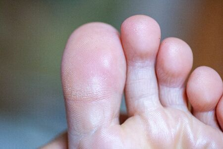 young girl's toes are healthy and beautiful. Well-groomed Concept for medical articles and ointments - the image of the feet. Image of legs with space for inscriptions and advertising. Imagens - 131204475