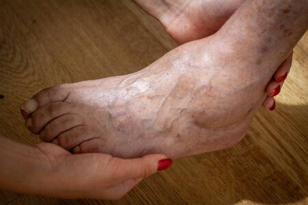 closeup feet of old man suffering from leprosy with a cane on the ground