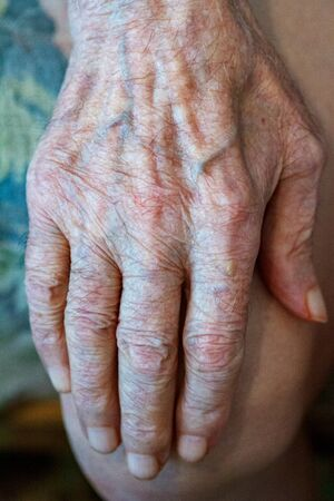 The process of aging of human skin - wrinkled hands of a very old man who lived 90-100 years with dry skin covered with wrinkles and spots Foto de archivo