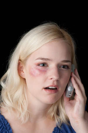 bruised: Young woman with bruised eye making a distress call Stock Photo
