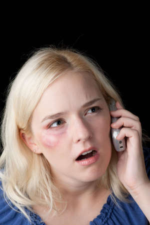 Young woman with bruised eye making a distress call photo