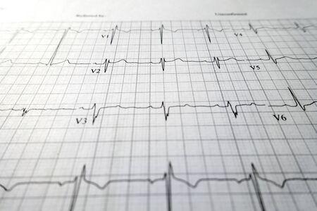 heart test ekg sheet print out Standard-Bild