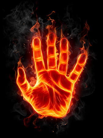 quemadura: Mano de fuego
