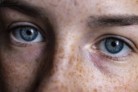 Face of a girl with freckles. Blue eyes of a girl close-up