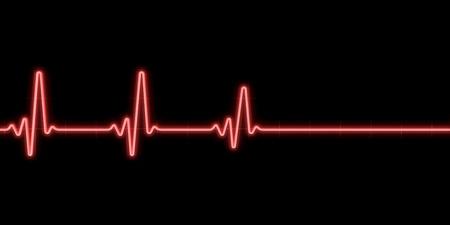 tachycardia: Latido sobre fondo negro