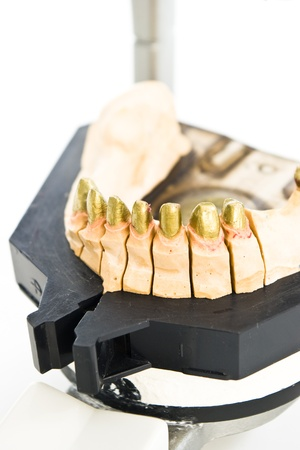metal dental mold in laboratory Stock Photo - 12429954